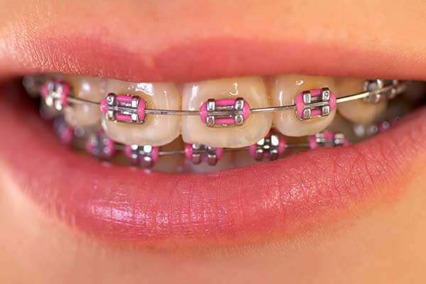Metal Braces Image